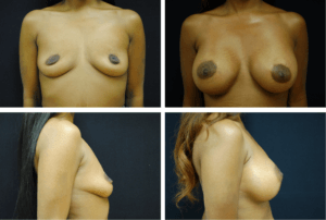 Breast Augmentation Silicone Case 99118
