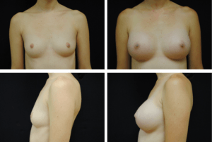 Breast Augmentation Silicone Case 99119