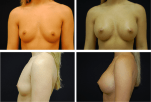 Breast Augmentation Silicone Case 99120
