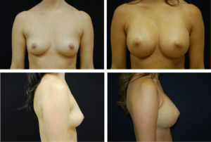 Breast Augmentation Silicone Case 99121
