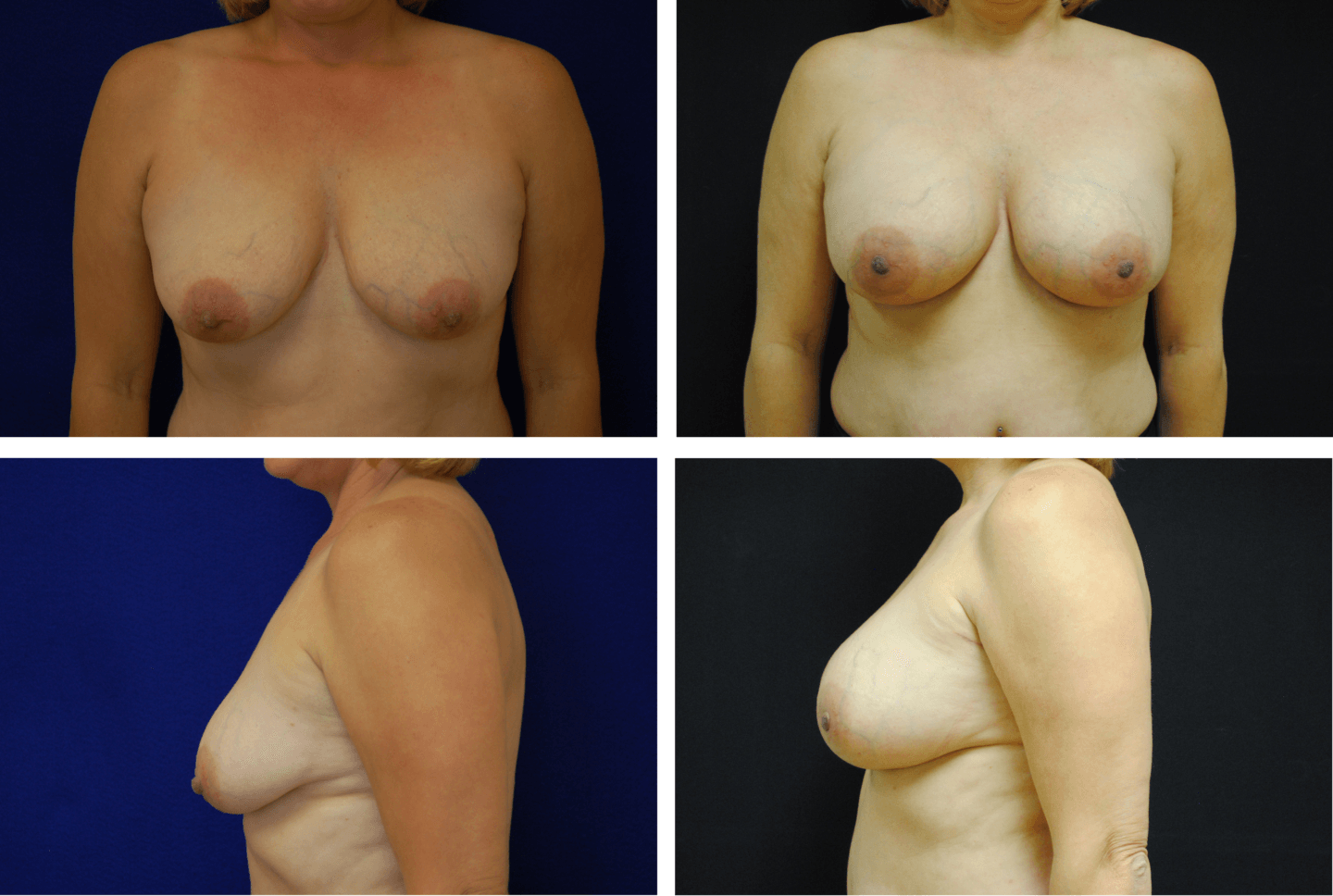 Breast Augmentation Silicone Case 99122