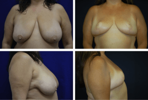 Breast Reduction Case 98104