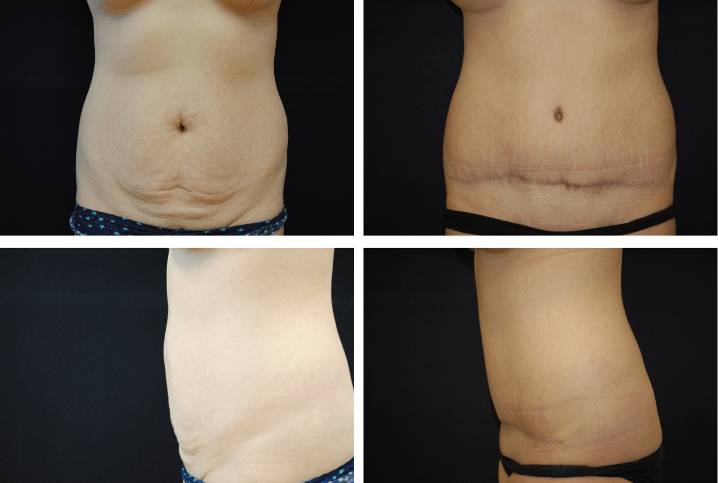 Abdominoplasty Case 92104