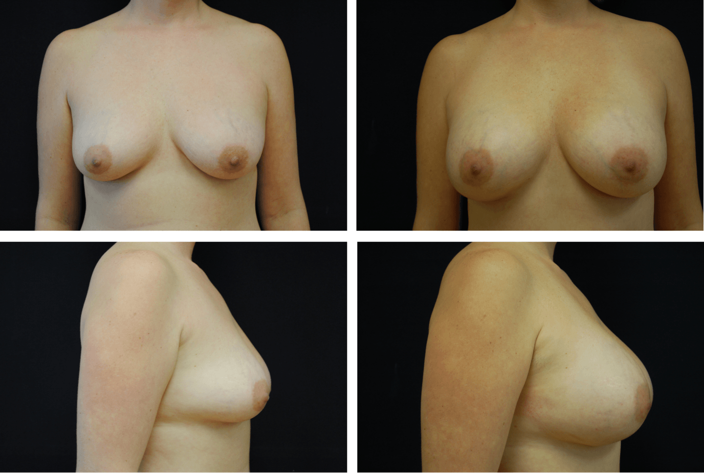 Breast Augmentation Silicone Case 99123
