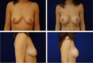 Breast Augmentation Silicone Case 99124