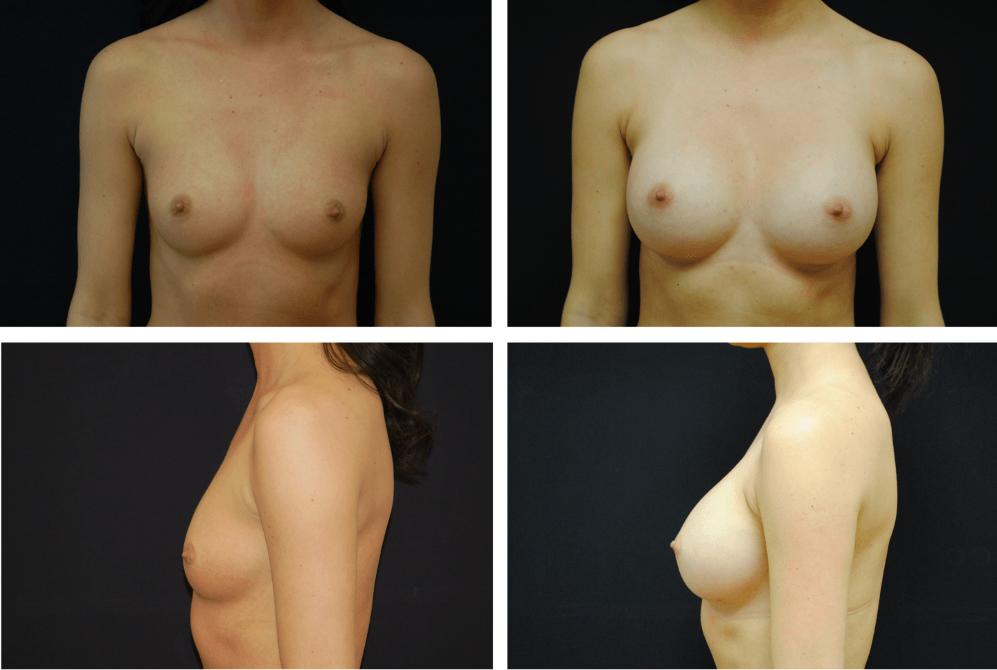 Breast Augmentation Silicone Case 99125