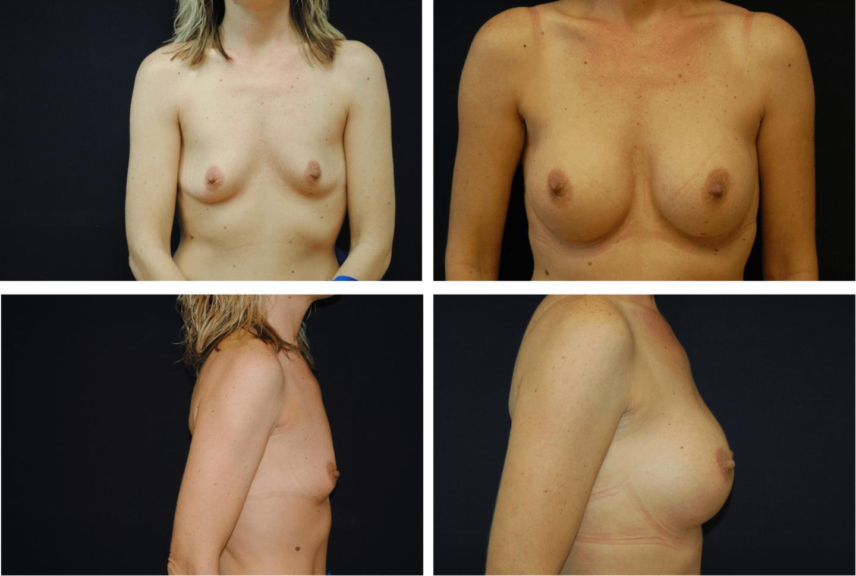 Breast Augmentation Silicone Case 99126