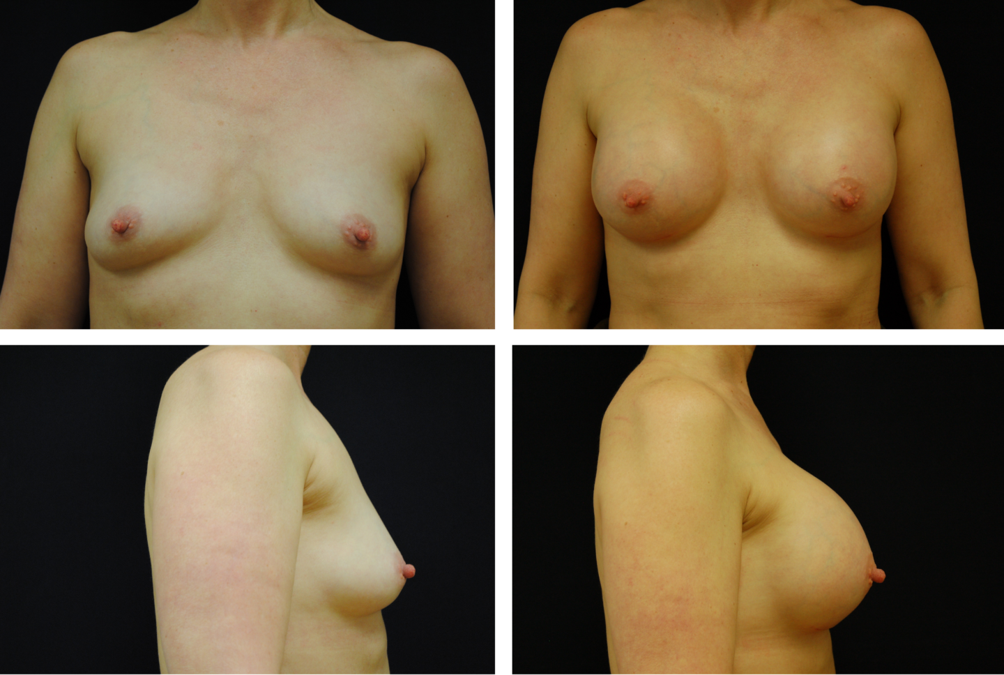 Breast Augmentation Silicone Case 99128