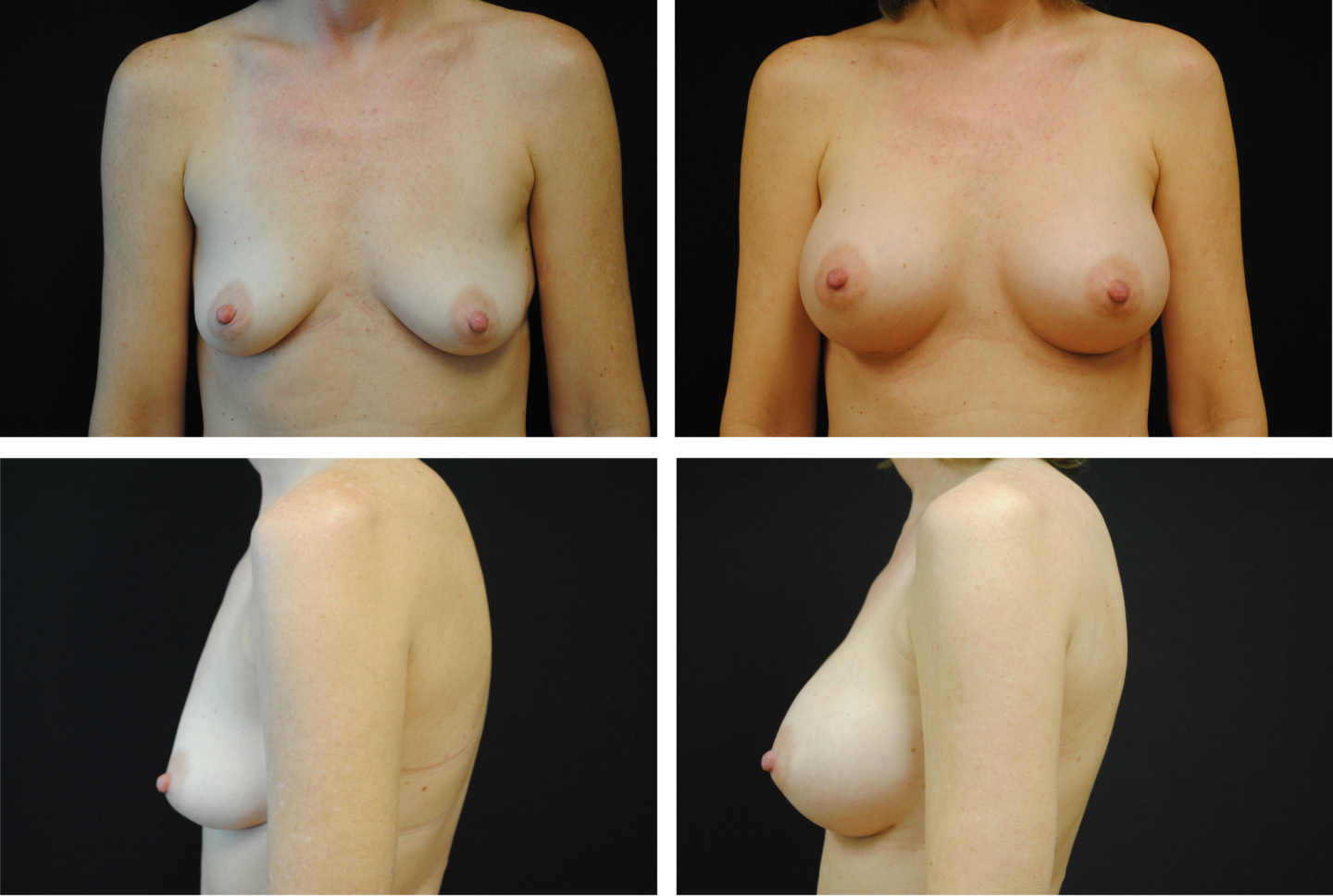 Breast Augmentation Silicone Case 99129