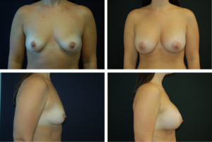 Breast Augmentation Silicone Case 99130