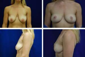 Breast Lift Case 89000