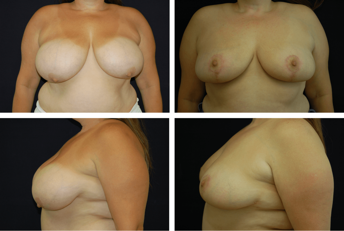 Breast Reduction Case 98105
