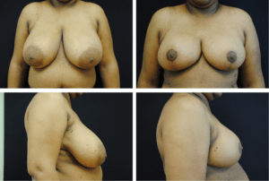Breast Reduction Case 98106