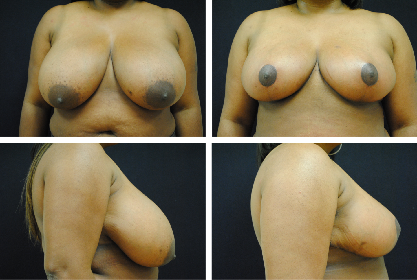 Breast Reduction Case 98107
