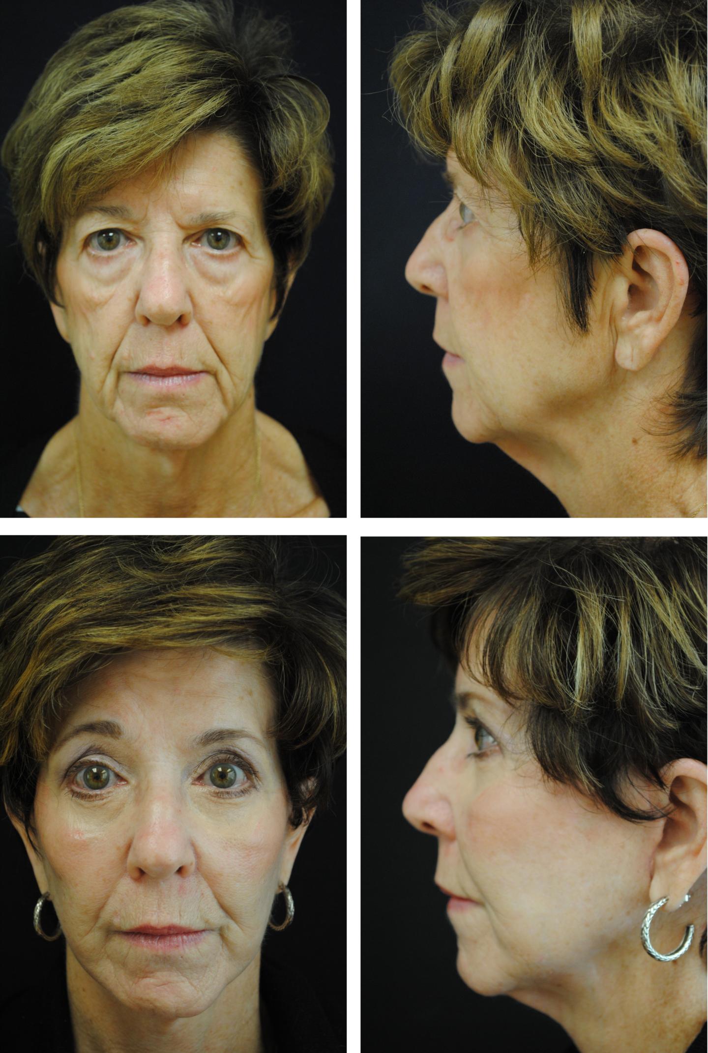 Brow Lift Bleph Facelift Cheek Implants Case 82100
