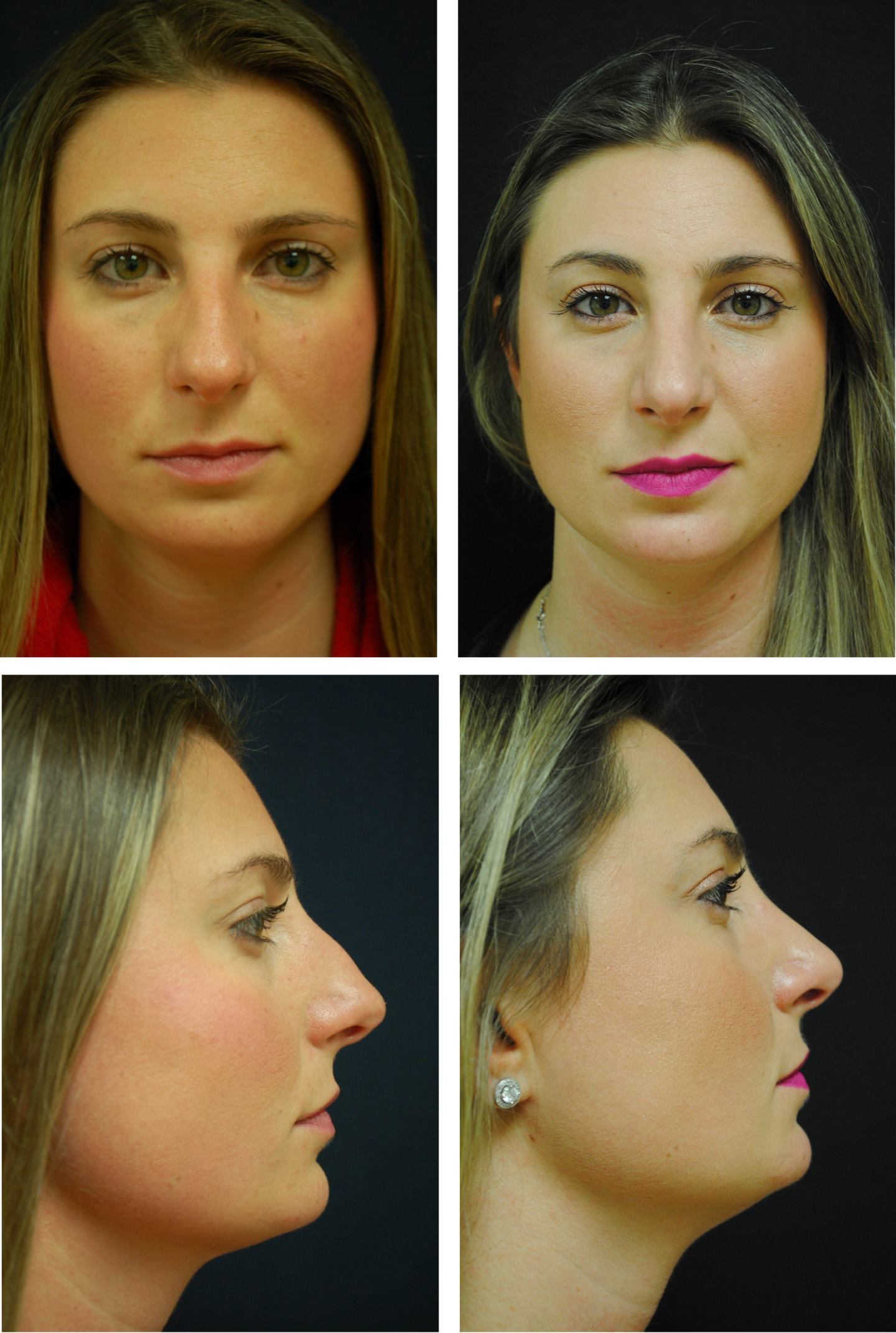 Rhinoplasty Case 6700