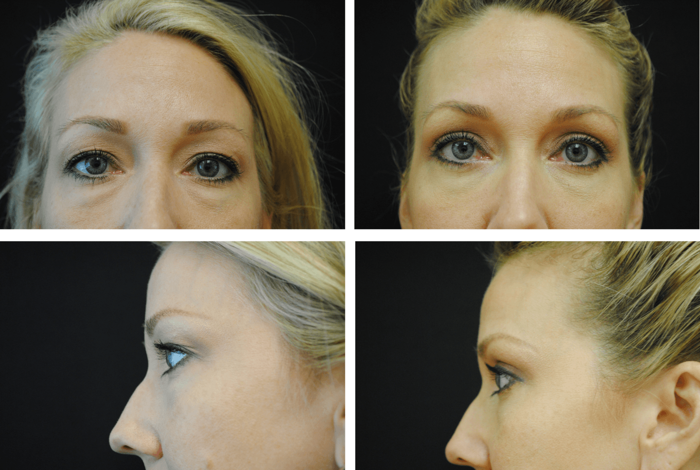 Blepharoplasty Case 95102