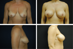 Breast Augmentation Silicone Case 99131