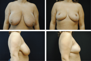 Breast Reduction Case 98108