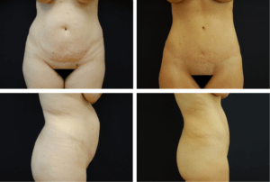 Abdominoplasty Case 9210
