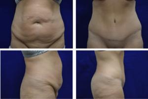 Abdominoplasty Case 92105