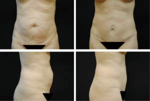 Abdominoplasty Case 92107