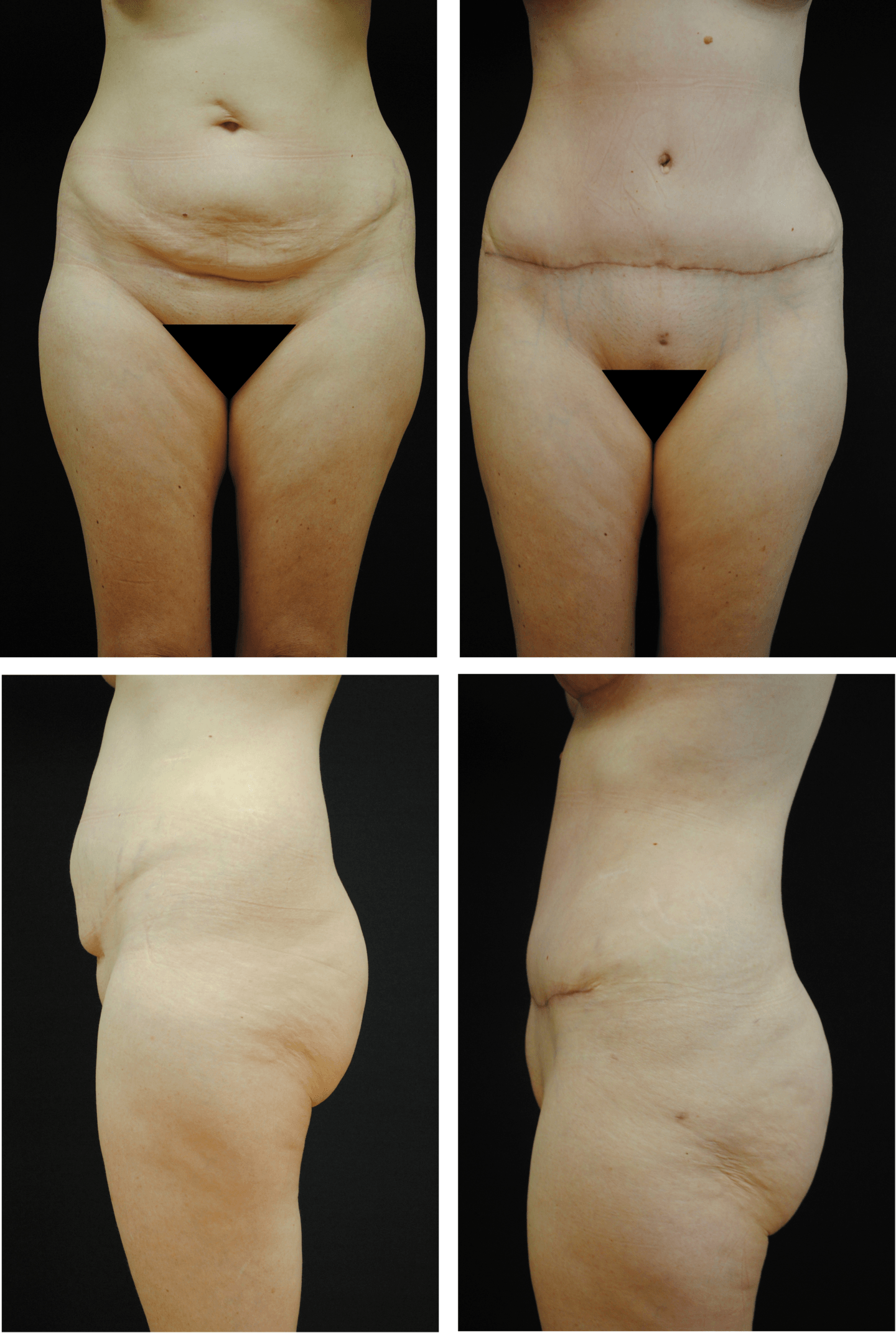 Abdominoplasty Case 92108