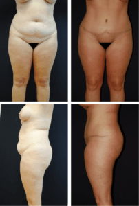 Abdominoplasty Case 92109