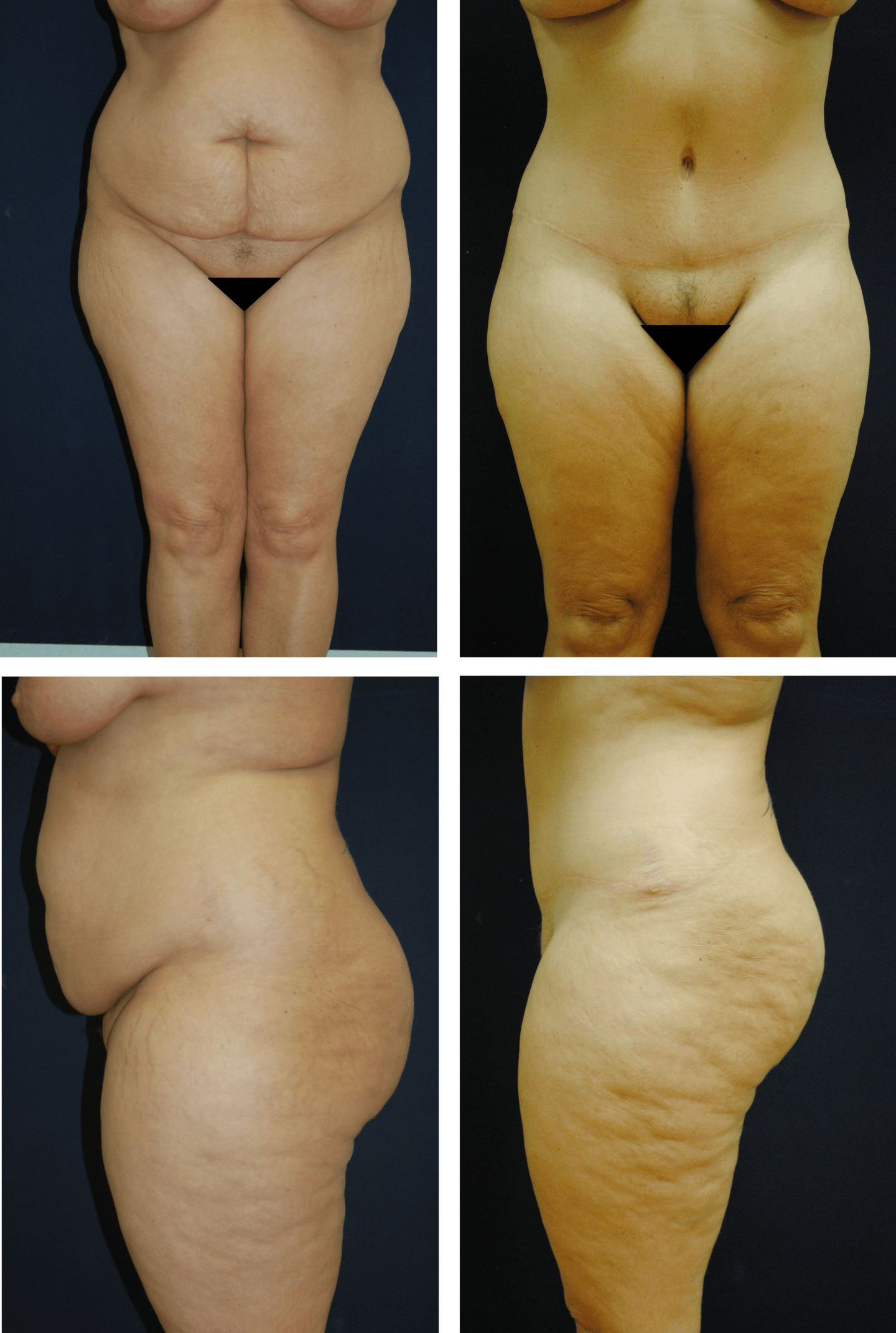 Abdominoplasty Case 9211
