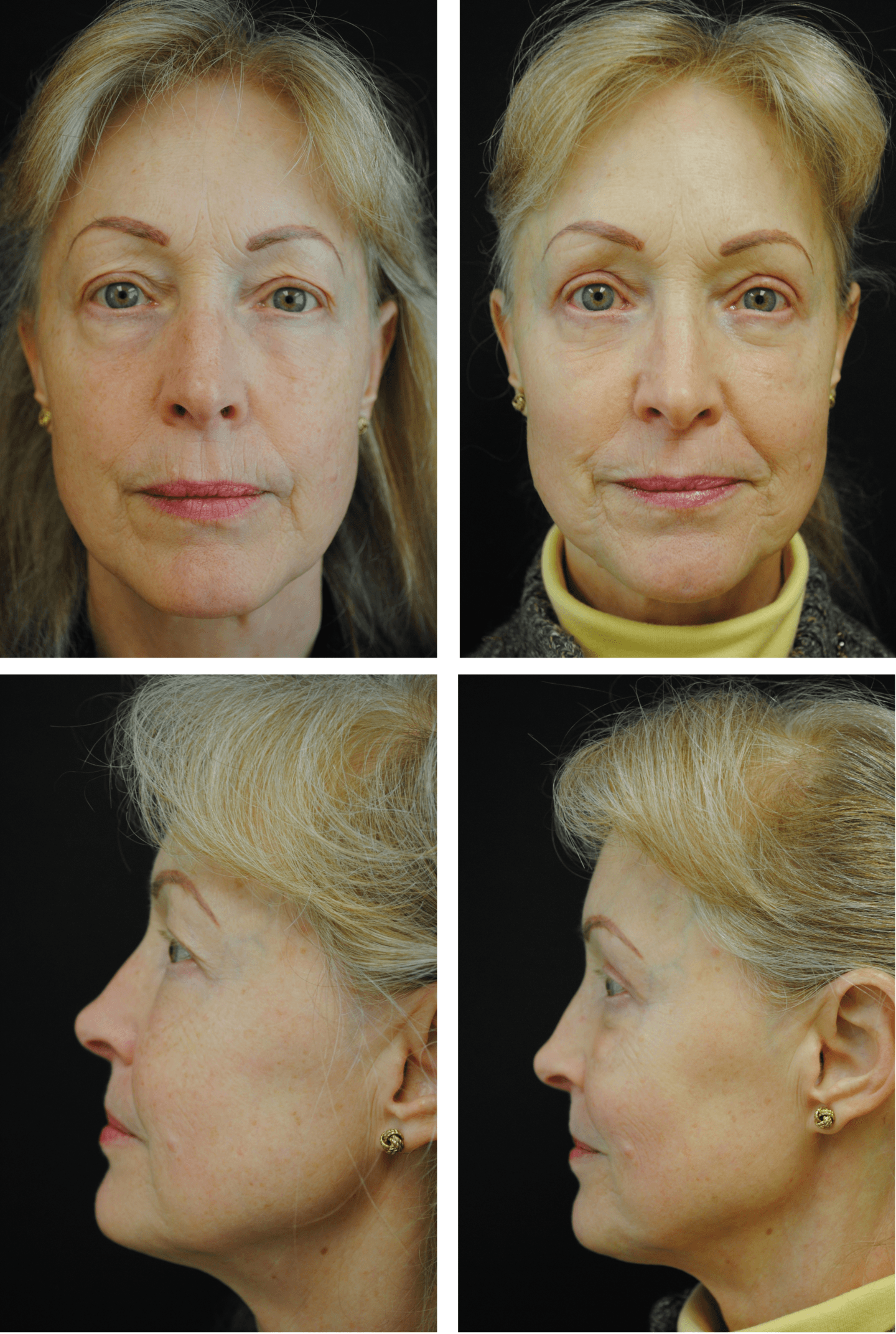 Blepharoplasty Case 95104