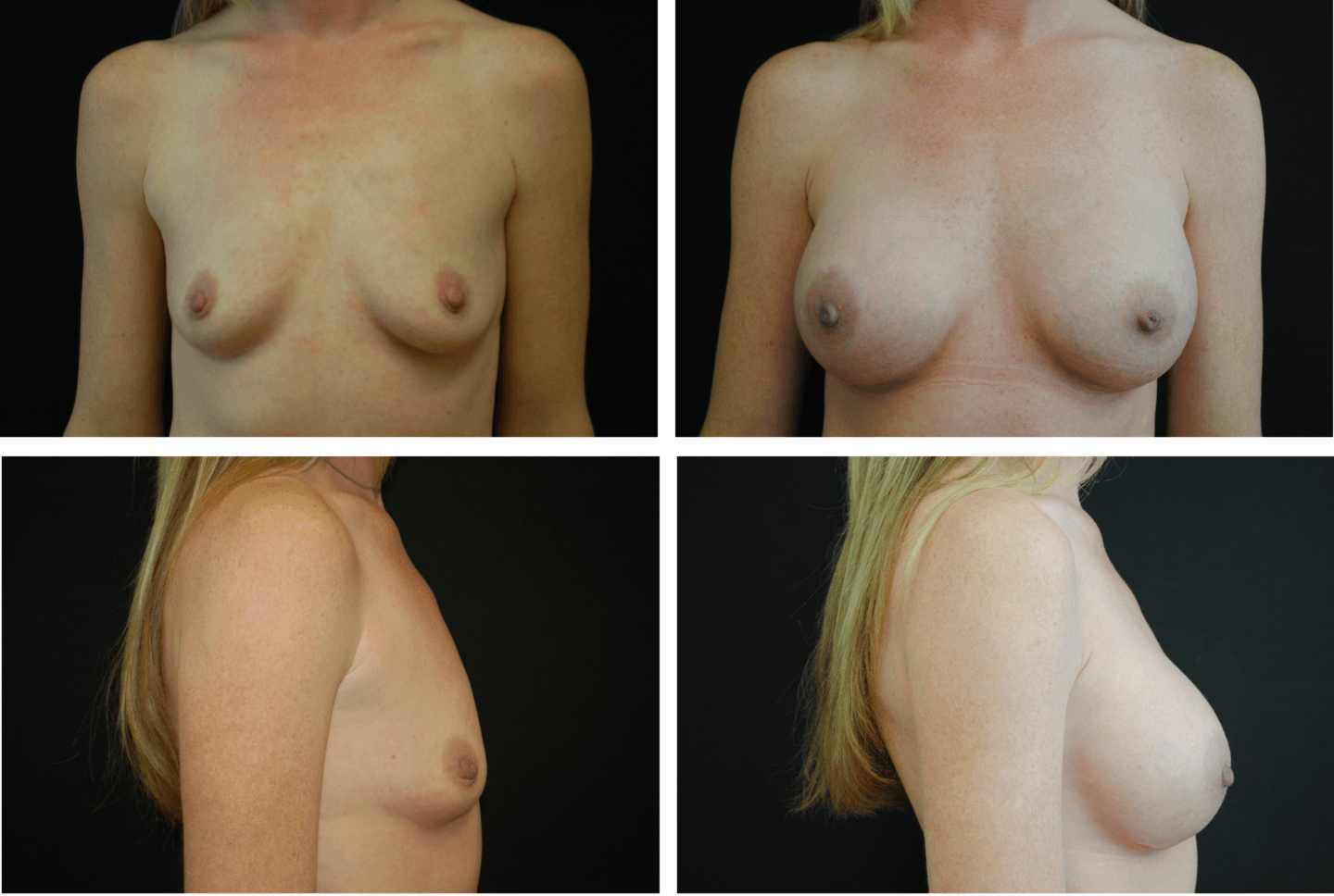 Breast Augmentation Case 99132