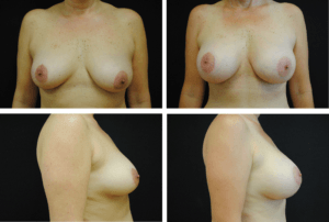 Breast Augmentation Case 99133