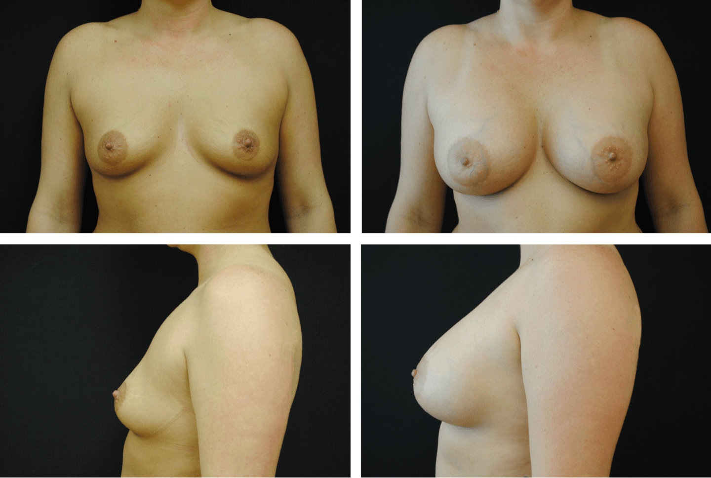 Breast Augmentation Silicone Case 99135