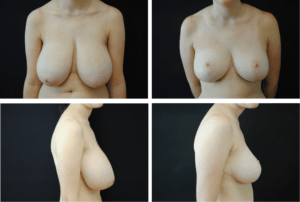 Breast Reduction Case 98109