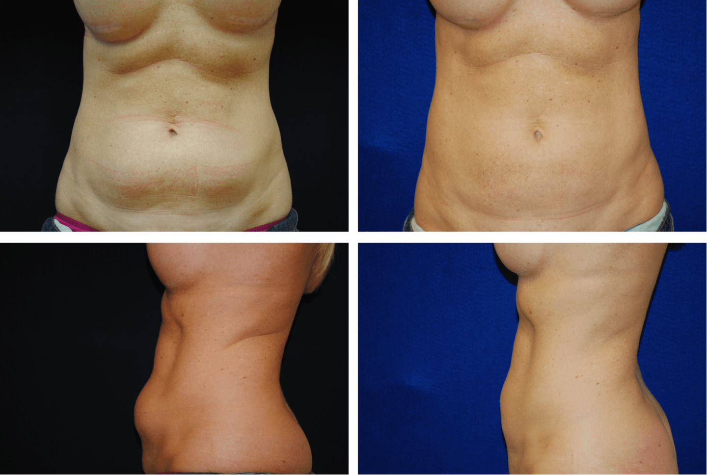 Liposuction Abdomen and Flanks Case 7001