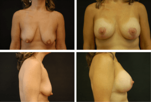 Breast Aug Case 99137