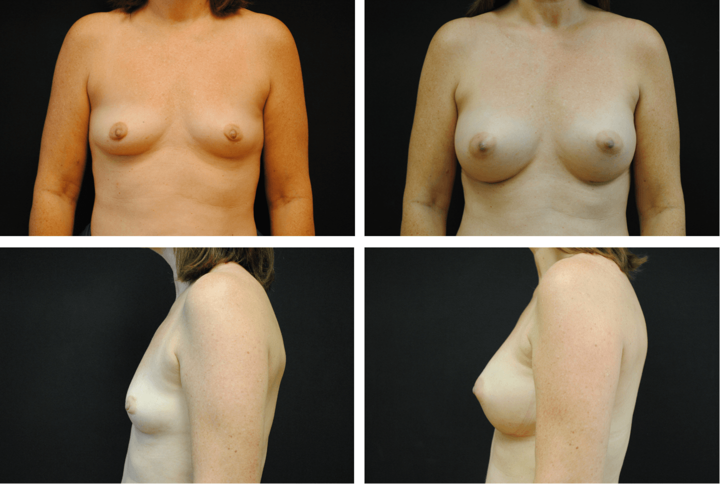 Breast Augmentation Case 99134