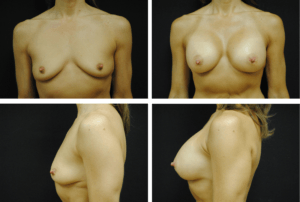 Breast Augmentation Case 99136