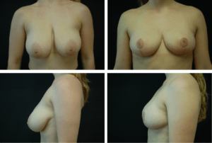 Breast Reduction Case 98110