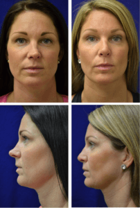 Rhinoplasty Case 6701