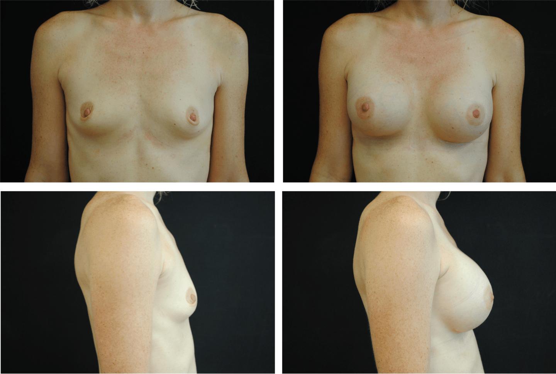 Breast Augmentation Case 99137