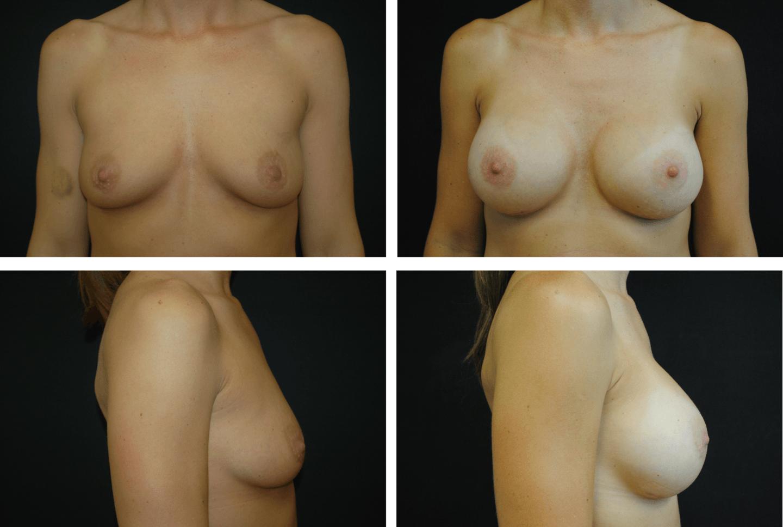 Breast Augmentation Case 99138