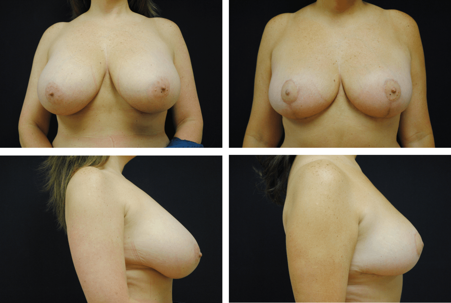 Breast Reduction Case # 98111