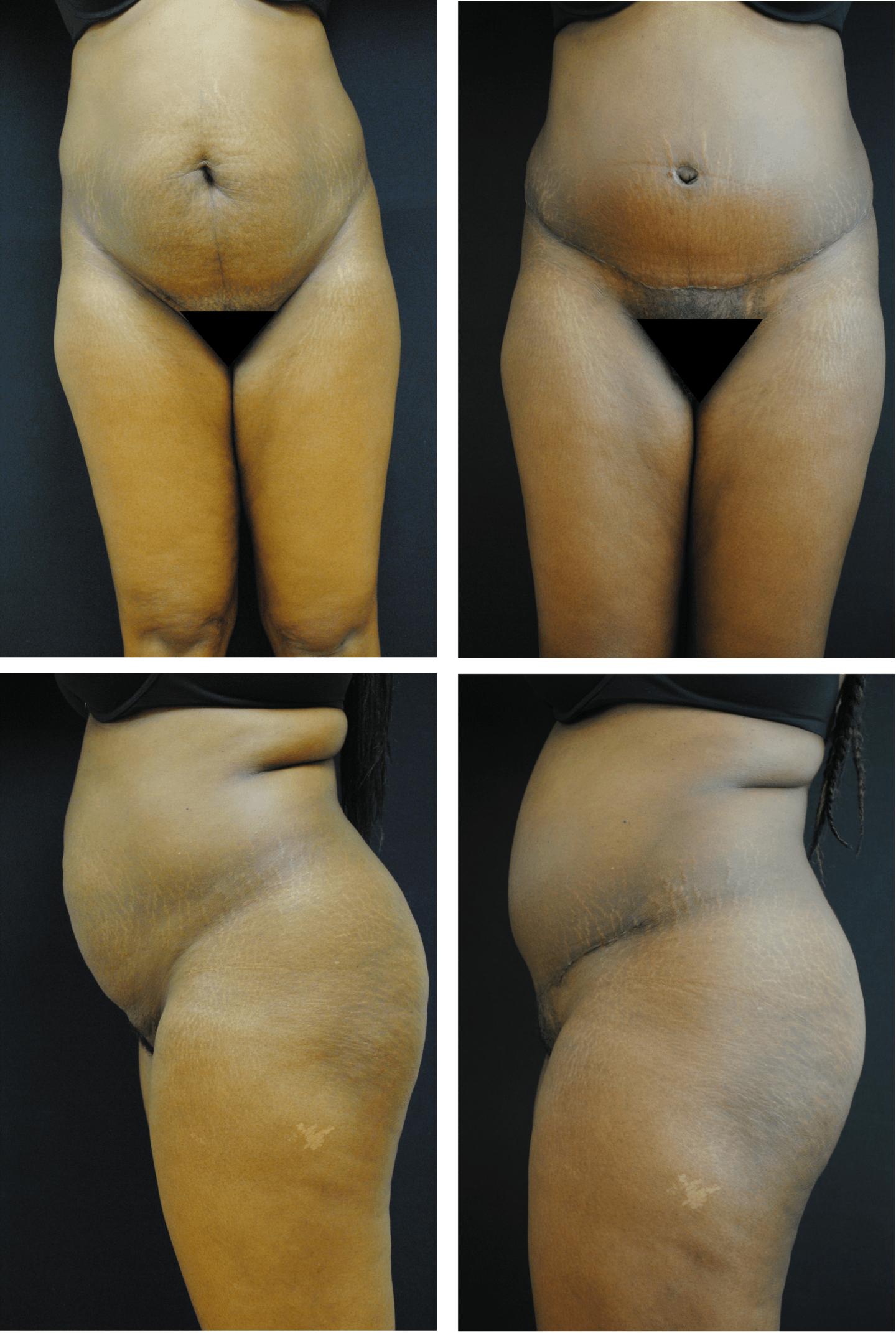 abdominoplasty-case-92112