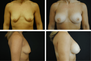 breast-augmentation-case-99140