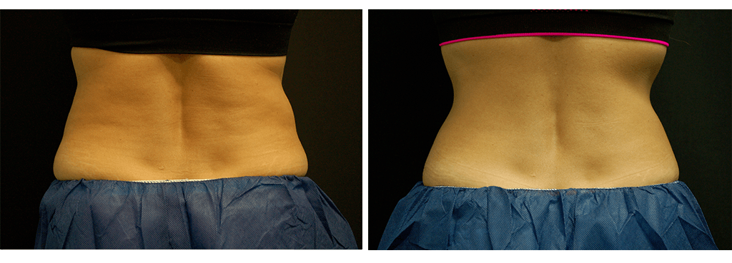 coolsculpting-1024x369