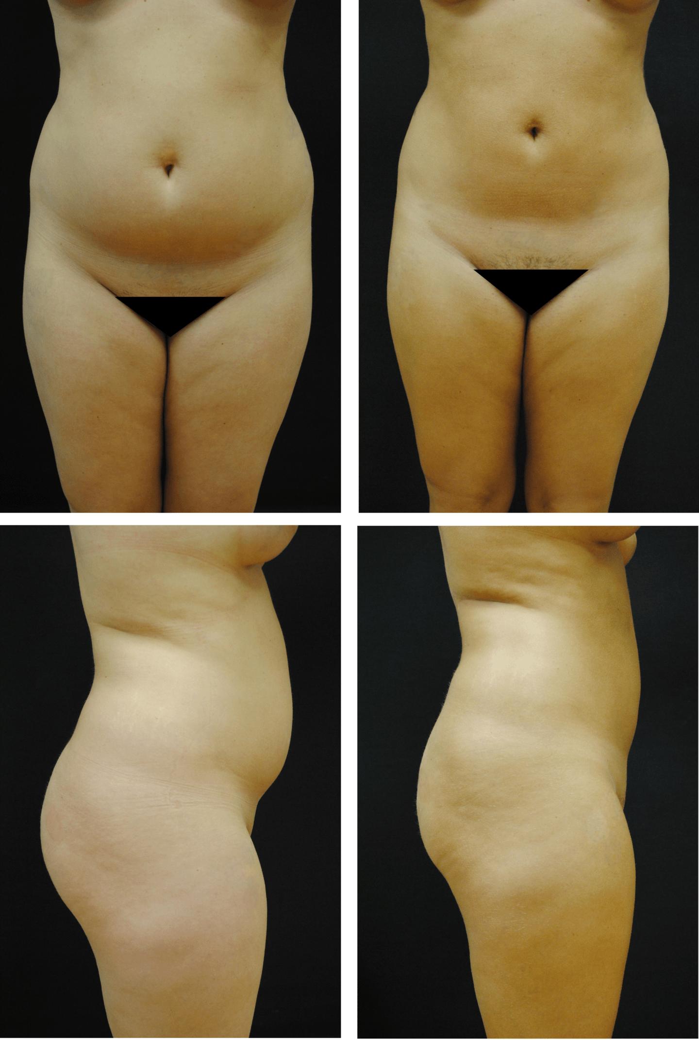liposuction-case-92113