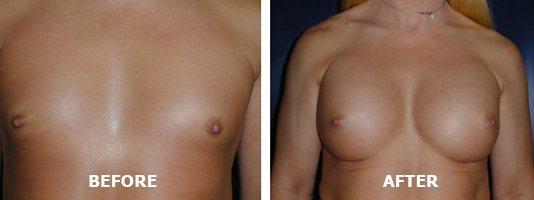 Transgender Plastic Surgery The Plastic Surgery Group