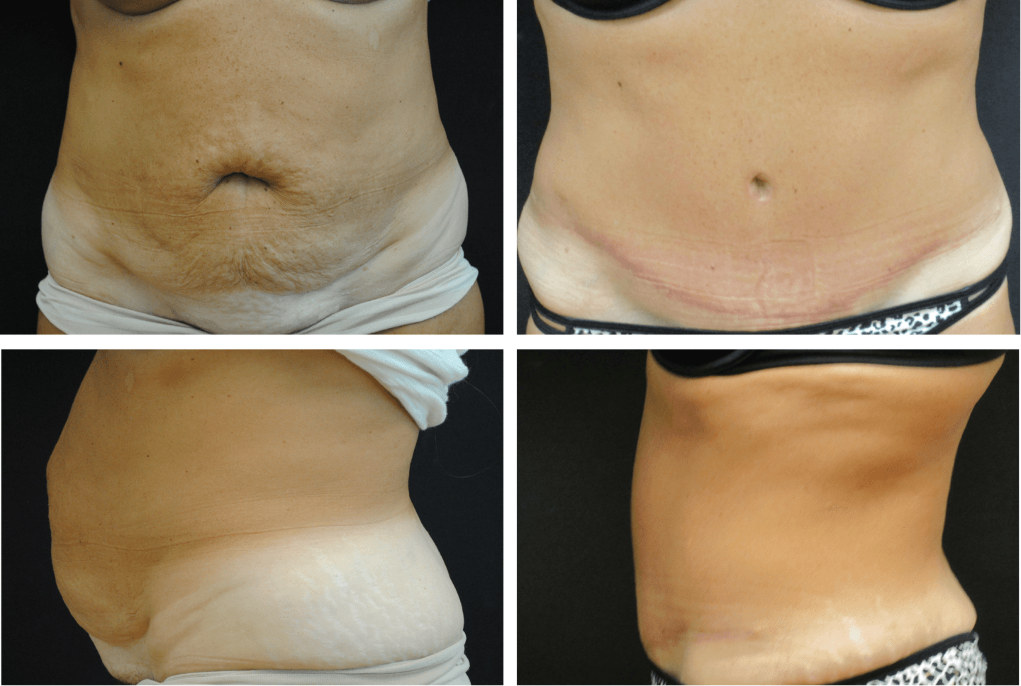 Abdominoplasty Case 92114