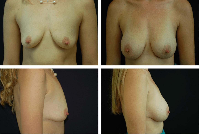 BreastAug Case 99144